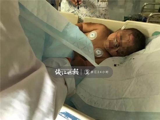 为救3岁烧伤女孩 杭州人把这家花店买空!